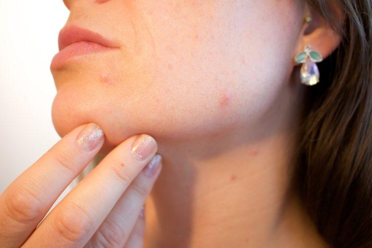 Acne, Eczema, Psoriasis, skin disorder